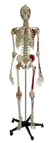 Super Skelette