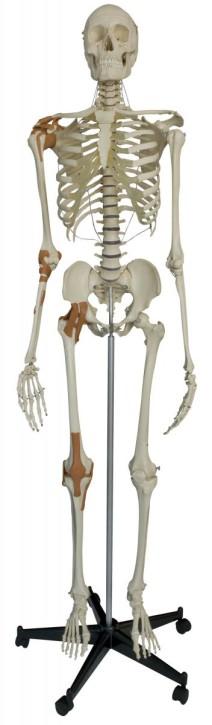 Skelett mit 4 Gelenkbändern