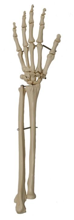 Handskelett mit Unterarm oder Unterarmansatz