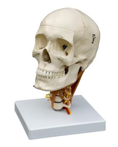 Schädel auf Halswirbelsäule mit Darstellung der Halsmuskulatur