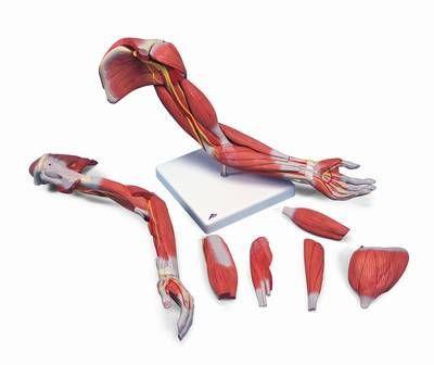 Muskelarm, 6-teilig
