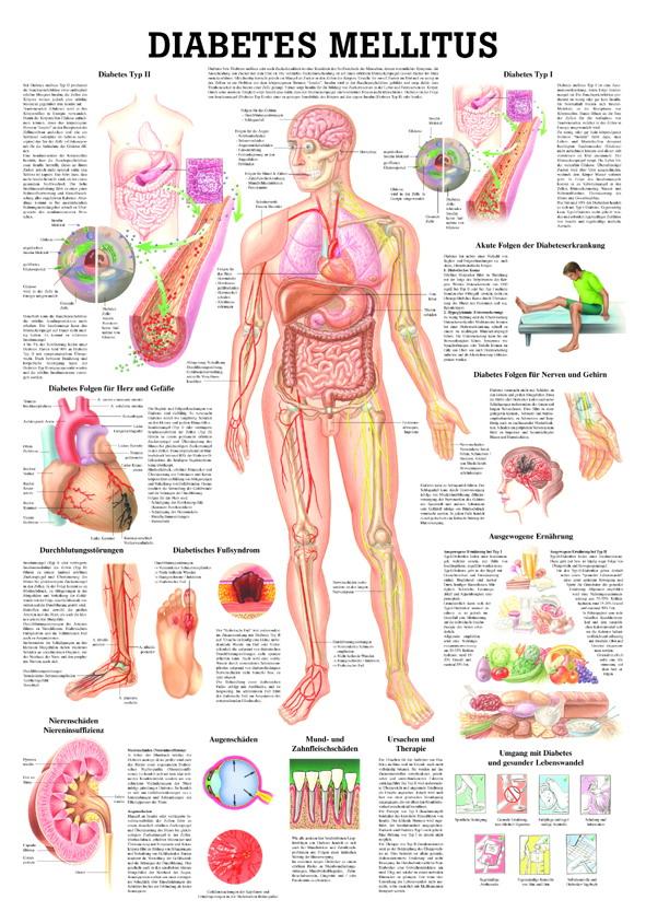 Nierenversagen durch diabetes