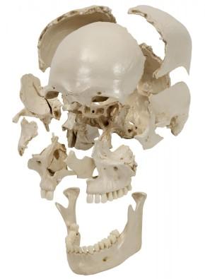 Skelett mit weißem Steckschädel